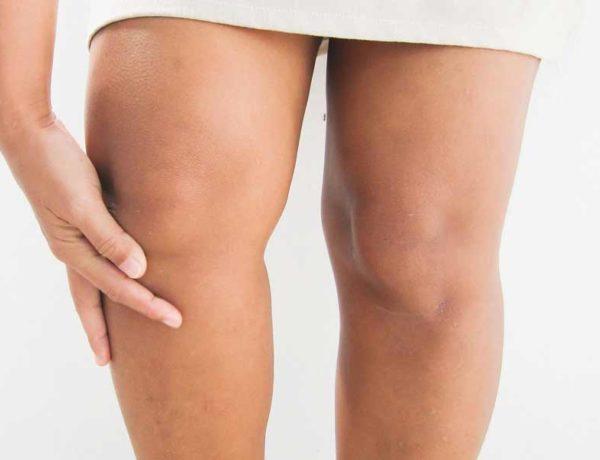 como tener unas rodillas bonitas