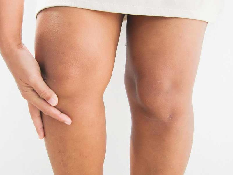 Cómo tener unas rodillas fuertes, bonitas y sin flacidez - Babú Magazine