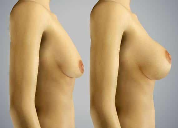 Cirugía de elevación de pecho