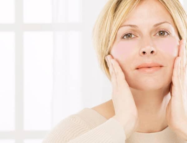 cómo combatir las rojeces de la cara