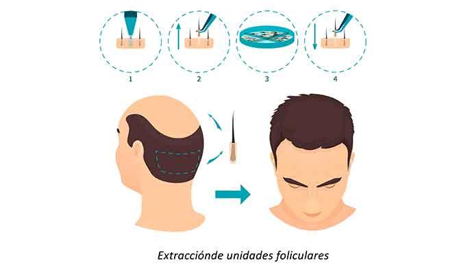 microinjerto capilar